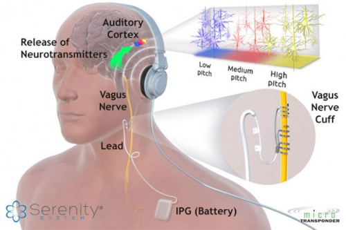 Does tmj cause pulsatile tinnitus